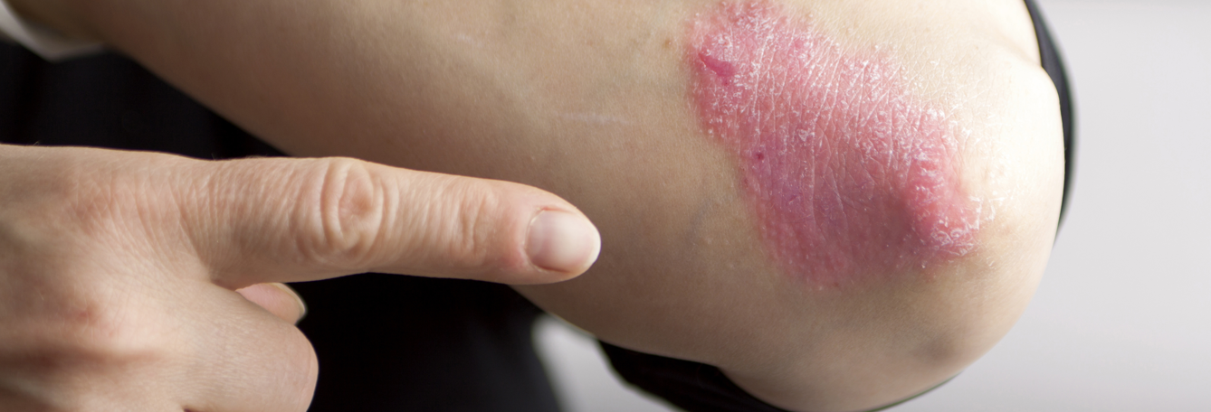 5 Different Types of Eczema
